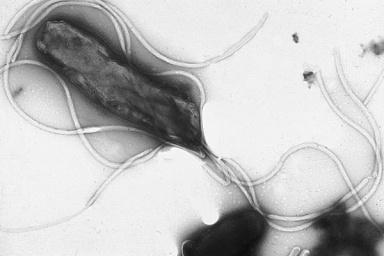 Electron micrograph of bacterium H. pylori, with flagella clearly visible. Image by Yutaka Tsutsumi.